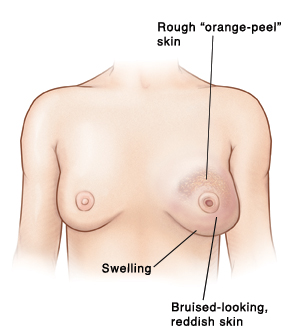 Front view of woman's chest showing swelling, rough orange-peel skin, and bruised-looking, reddish skin on left breast. Left breast has inverted nipple. Right breast is normal.