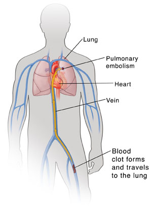 Outline of man's torso showing heart, lungs, and major veins. Blood clot is in leg vein with arrow showing it traveling up vein to lung.