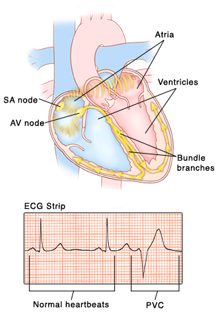 Front view of heart showing atria on top and ventricles on bottom. SA node and AV node are in right atrium. Bundle branch nerves are in wall between ventricles and curve into ventricle walls. Signals from AV node travel to AV node and into bundle branches. Inset of ECG strip with pattern of normal heartbeat compared to irregular pattern of PVC.