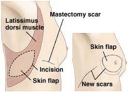 Outline of woman from back with right arm raised. Mastectomy scar is on chest. Latissimus dorsi muscle is visible under skin of back and side. Oval skin flap is on top of muscle on side of body. Inset of woman's torso showing breast reconstructed with muscle. New scars are around reconstructed breast and on side of body.