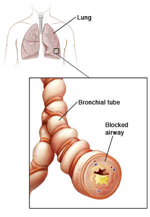 Outline of human chest showing trachea and lungs. Closeup of bronchial tube showing muscles wrapped around tube squeezing it. Tube wall is inflamed, and mucus in tube is blocking airway.