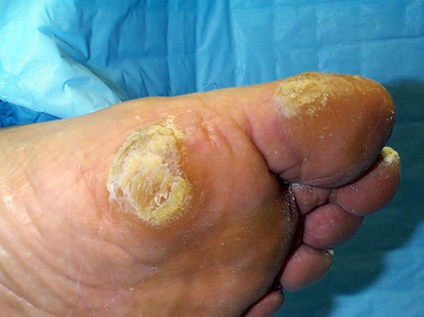 Photo of foot with ulcer