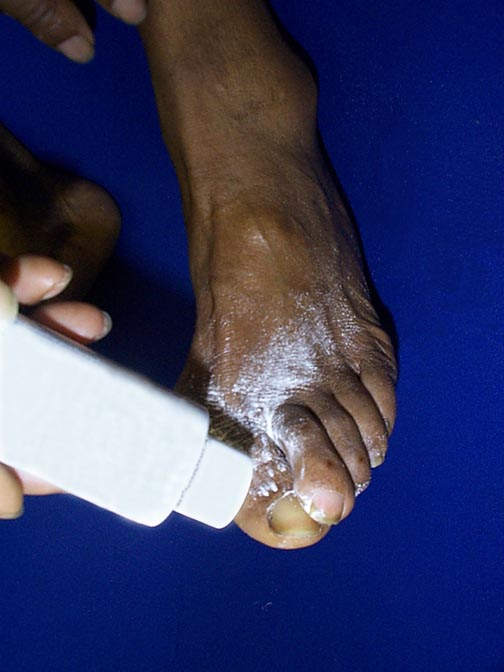 Photo of person applying antifungal powder to foot