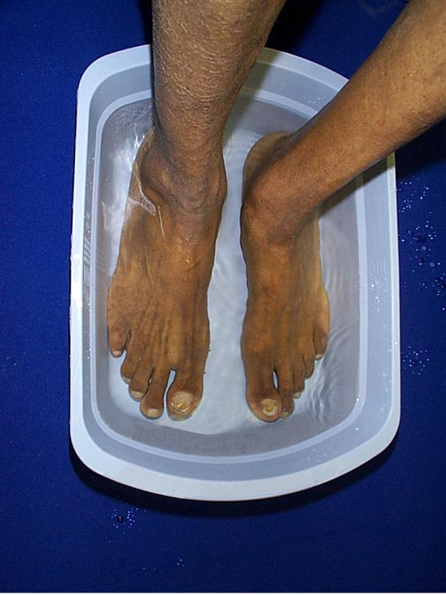 Photo of person soaking feet