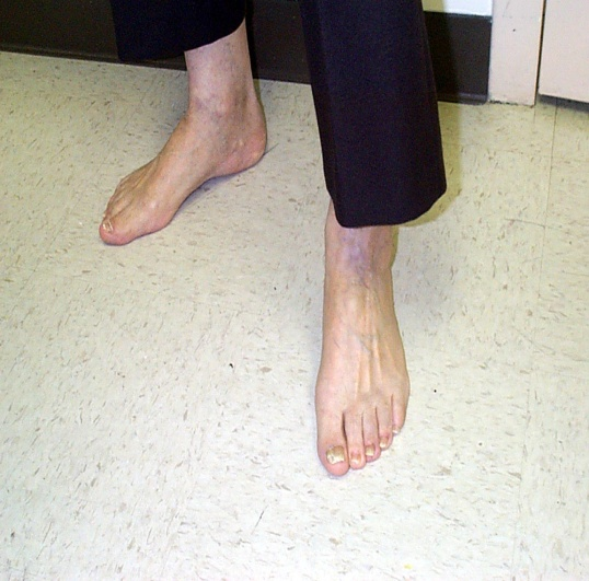 Photo of bare feet