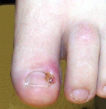 Photo of irritated toenail