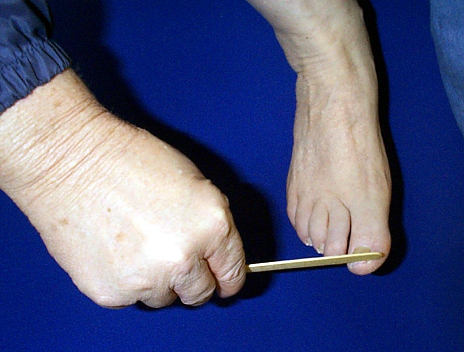 Photo of person filing toenail