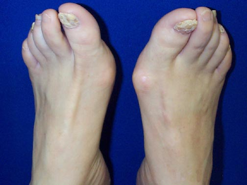 Photo of curved, thickened toenails