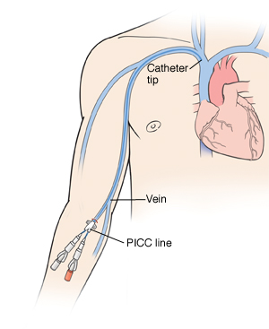 Outline of human figure with catheter inserted into right arm at elbow. Two ports are at end of catheter. Catheter can be seen going up arm vein into heart.