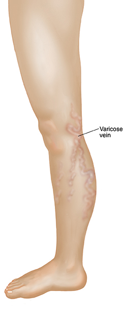 Side view of leg showing varicose vein.