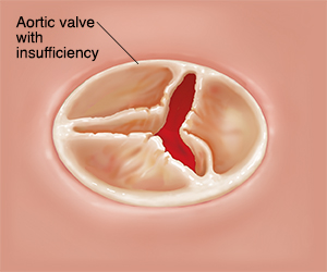 Top view of closed aortic valve with insufficiency.