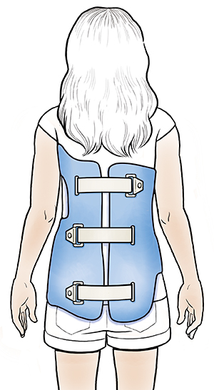 Girl wearing scoliosis brace, viewed from behind.