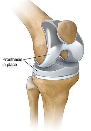 Total knee prosthesis in place.