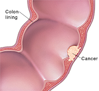 Cross section of segment of colon showing cancer.