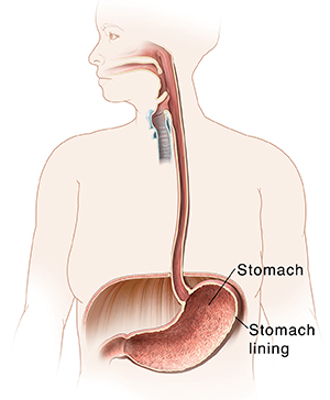 Outline of woman showing mouth, esophagus, and stomach.