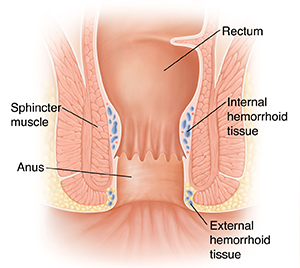 Cross section of normal rectum and anus.
