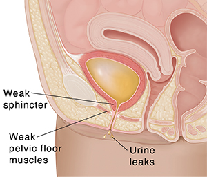 Closeup cross section of female pelvis showing stress incontinence.