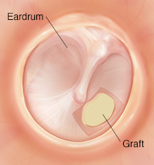 Eardrum with repaired hole.