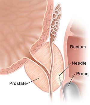 Closeup cross section of prostate and rectum. Transducer is inserted into rectum and needle is inserted into prostate.