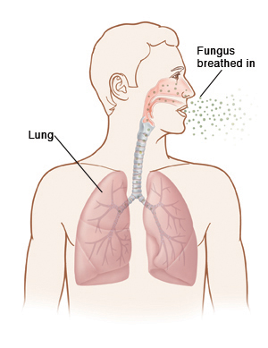 Outline of human head and chest with head turned to side. Inside of nose, trachea, and lungs are visible. Fungus is being breathed in to nose and lungs.