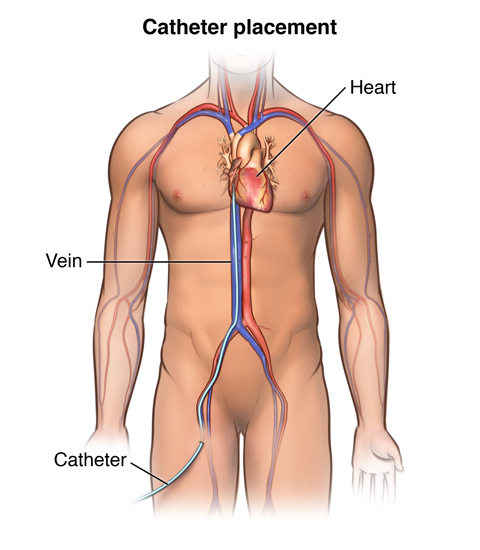 Front view of male torso showing catheter inserted in upper thigh and ending in heart.