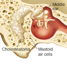 Cross section through mastoid bone and middle ear showing cholesteatoma.
