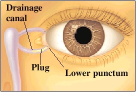 Front view of eye showing plug in drainage system of eye.