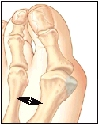 Image of the big toe joint