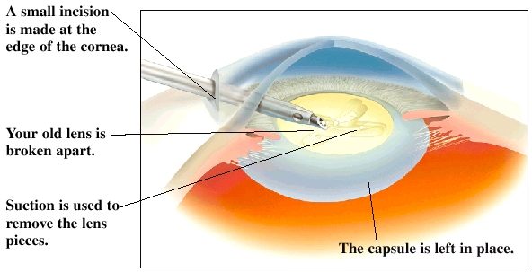 Cross section of front part of eye showing cornea, pupil, and lens. Incision is made near lens at edge of cornea. Instrument is breaking old lens apart. Suction in instrument is removing lens pieces. Capsule around lens is left in place.