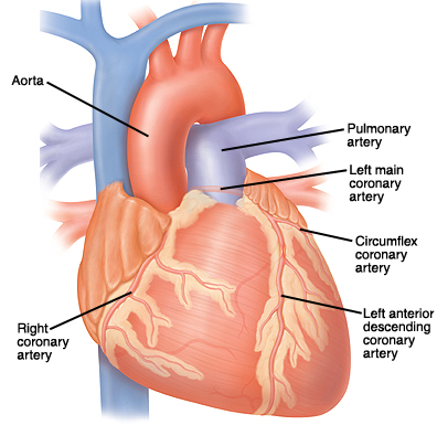 Front view of heart, great vessels, and coronary arteries. Coronary arteries are on surface of heart. Aorta is large artery exiting top of heart. Pulmonary artery is large artery exiting top of heart that branches to left and right. Right coronary artery comes from base of aorta down right side of heart. Left main coronary artery comes from base of aorta, goes behind pulmonary artery, and branches into circumflex and left anterior descending coronary arteries.