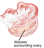 Closeup of ovary with abscess surrounding it.