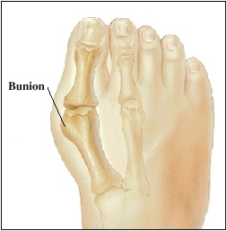 Top of foot showing bones of big toe and moderate bunion.