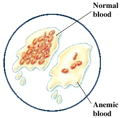 Blood sample with many red blood cells, next to sample of blood with few red blood cells.