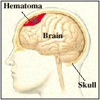 Outline of head with brain inside skull bone. Hematoma is building up between skull and brain, pressing on brain.
