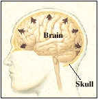Outline of head with brain inside skull bone. Arrows show brain swelling out and pressing against inside of skull.