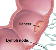 Closeup of colon wall and lymph nodes showing cancer spreading through colon wall.
