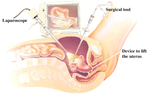 Side view cross section of female pelvis showing laparoscope and surgical tool inserted in abdomen. Device to lift uterus is inserted in vagina and is holding on to cervix. Video monitor in background.
