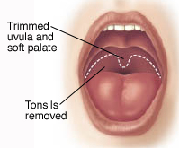 Front view of open mouth showing tissues trimmed during UPPP.