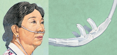 Woman wearing nasal cannula. Closeup of nasal cannula prongs.