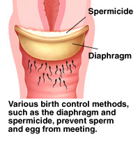 Cross section of cervix with diaphragm in place. Spermicide fills diaphragm. Various birth control methods, such as diaphragm and spermicide, prevent sperm and egg from meeting.