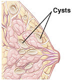 Side view of cross section of breast showing multiple cysts throughout breast tissue.