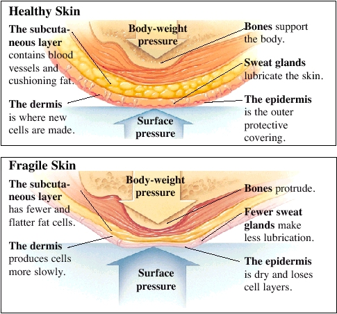 Cross section of skin showing layers of healthy skin and bone. Arrows show surface pressure and body-weight pressure on skin. Subcutaneous layer contains blood vessels and cushioning fat. Dermis is where new cells are made. Epidermis is outer protective covering. Sweat glands lubricate skin. Bones support body. Cross section of fragile skin showing layers of skin and bone. Arrows show surface pressure and body-weight pressure on skin. Subcutaneous layer has fewer and flatter fat cells. Dermis produces cells more slowly. Epidermis is dry and loses cell layers. Fewer sweat glands make less lubrication. Bones protrude.