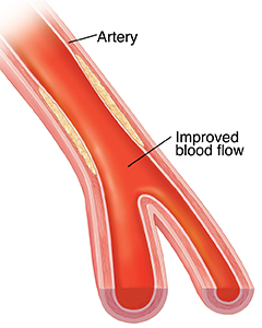 Cross-section of artery with plaque showing compressed plaque after balloon angioplasty.