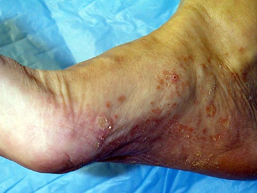 Photo of foot with sores