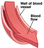 Cross section of blood vessel showing smooth wall. Arrow shows blood flow moving easily.