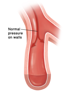 Artery with smooth walls and arrows showing normal pressure on walls.
