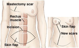 Outline of woman's torso showing rectus muscle in abdomen. Mastectomy scar is on chest. Dotted line shows incision circling lower belly to create skin flap. Inset of woman's torso showing skin flap brought up to reconstruct breast. New scars are around reconstructed breast and on lower abdomen.