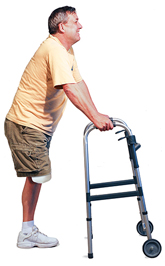 Man with amputated leg standing has walker out ahead of him, hands on grips.