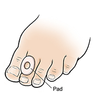 Foot with pad on second toe.