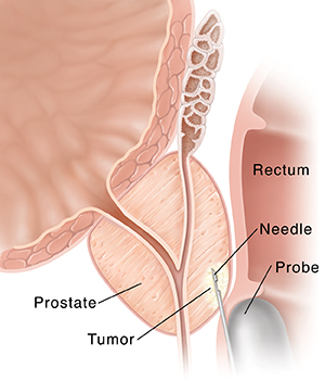Cross section of prostate and rectum showing needle biopsy of prostate.